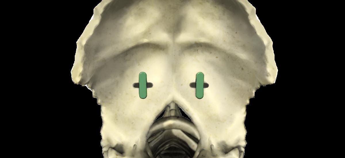 Occipital Anchors